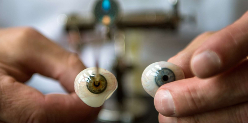 Bionic Eye restore the Function of the Defected Eye