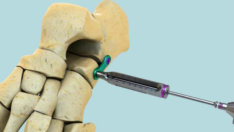 Osteotomy Plate Market (2018-2024)